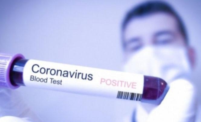Da li su zaista neke krvne grupe sklonije koroni? Kinezi poručuju da je najugroženija grupa A, a što kaže šefica Transfuzije…